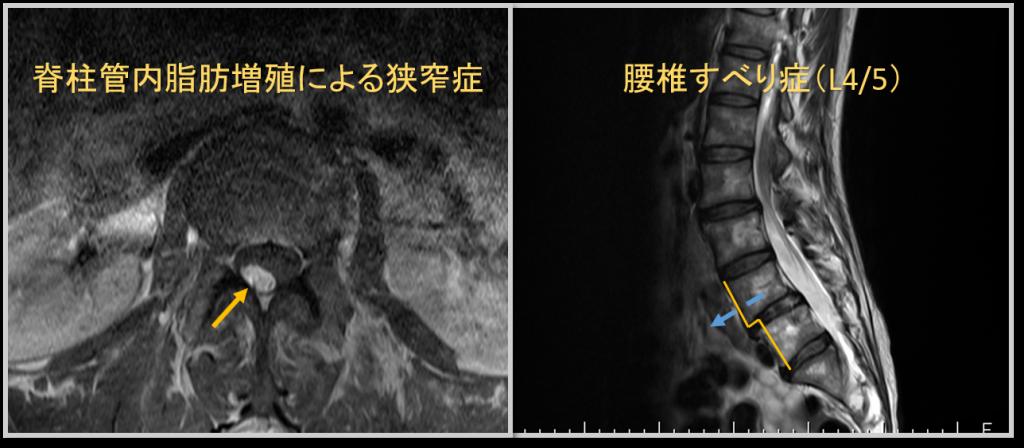 MRI画像所見